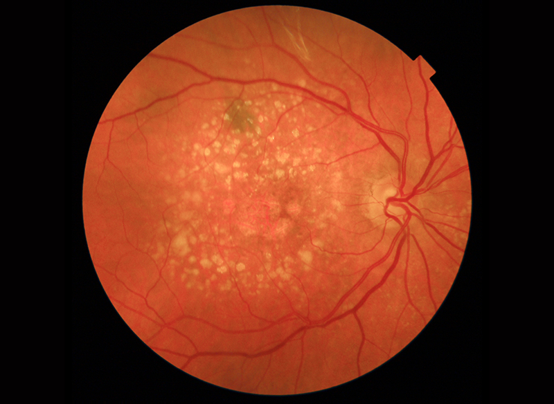 Clinical Photography Age Related Macular Degeneration